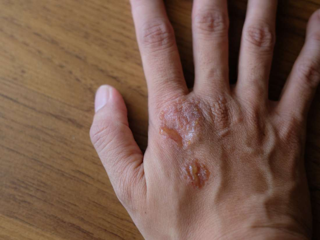 Psoriasis and HIV: What is the link?
