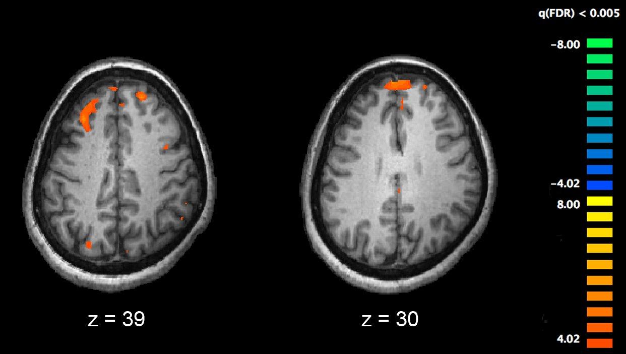Genetic variants implicated in development of schizophrenia
