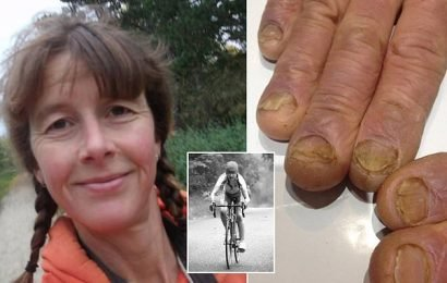 Tailor's fingers 'erupt' in ulcers and her nails FALL OFF