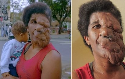 Woman, 40, has 'heavy' tumour engulfing her face that is inoperable