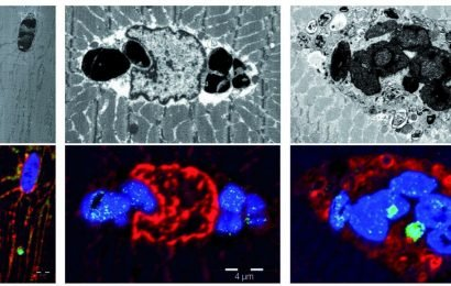 New muscular disease myoglobinopathy described