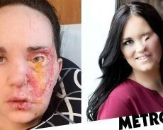 Mum falls on hair curler and burns her face during epileptic attack