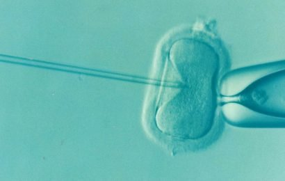 Artificial intelligence approach optimizes embryo selection for IVF