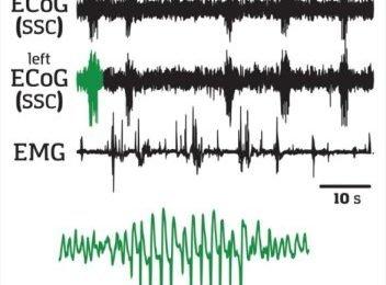 Trigger region found for absence epileptic seizures
