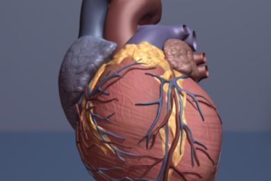Mobility may predict elderly heart attack survivors' repeat hospital stays