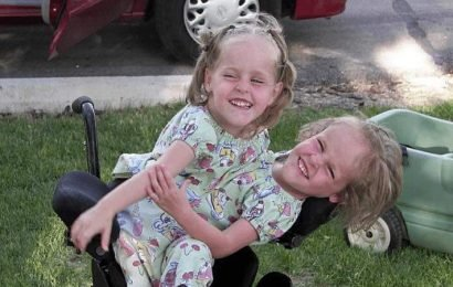 Conjoined Twins Separated in Risky Surgery 13 Years Ago Are Now Thriving With Only One Leg Each