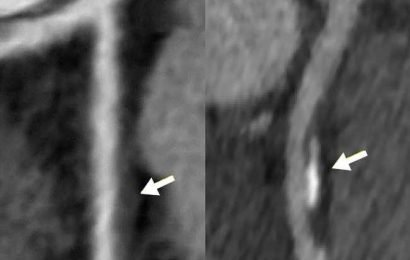 Women with coronary artery wall thickness at risk for heart disease
