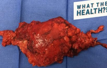 This Huge Cyst Was Removed From Inside a 58-Year-Old Woman's Pelvis