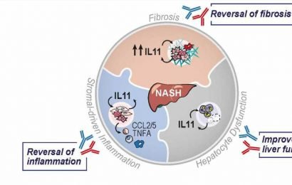 Translational research uncovers new treatment for fatty liver disease