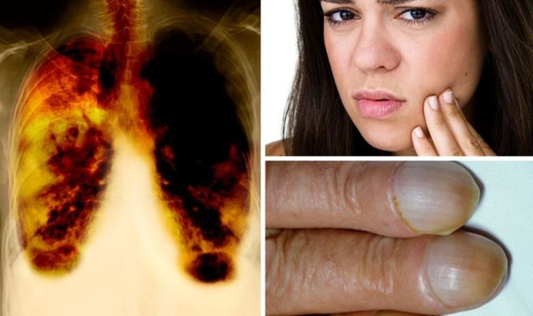 Lung cancer: Three 'unusual' symptoms to watch out for – what do your nails look like?