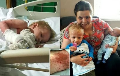 Toddler has such bad eczema strangers ask if he's a BURNS victim
