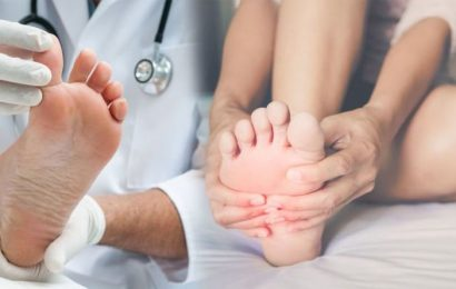 Foot health: The signs on your feet that indicate your health – are you healthy?