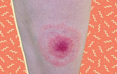 This Is What a Tick Bite Really Looks Like