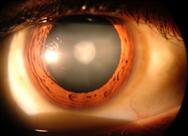 Q&A: When can cataract surgery wait?