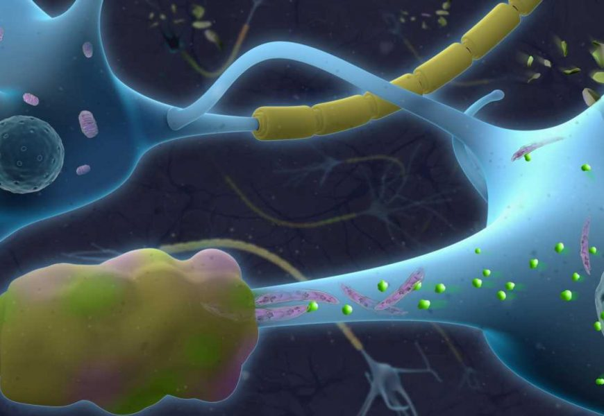 Differences in MS patients' cerebrospinal fluid may be key to drugs that halt progression