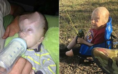 Alabama boy with one-of-a-kind genetic disorder defies odds at age 6: He's a 'miracle'
