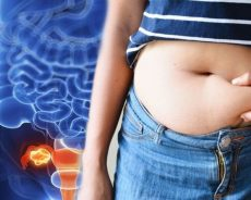 Stomach bloating: The one major sign of when it could mean cancer – what is it?