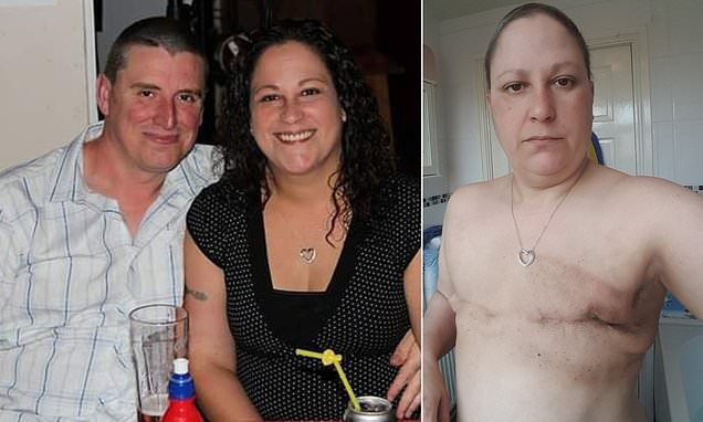 Mother, 42, hasn't had sex in two years after a double mastectomy