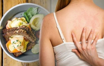 Eczema treatment: Avoiding this food could help reduce the inflammation