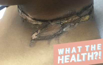 These Severe Burn Marks On A Woman's Neck Prove Why You Should Never Sleep With Your Phone