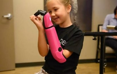 Mady hats back in the handle – eight-year-old gets bionic arm prosthesis