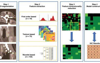 New radiomics model uses immunohistochemistry to predict thyroid nodules