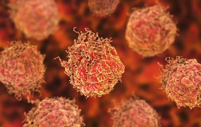 Men with advanced prostate cancer set to get first 'precision' drug