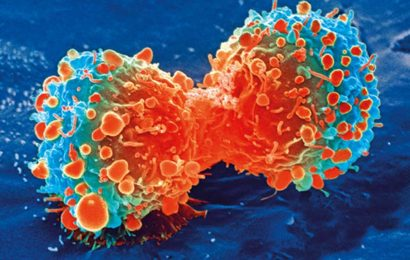 UK urine test that can detect early-stage pancreatic cancer starts clinical study