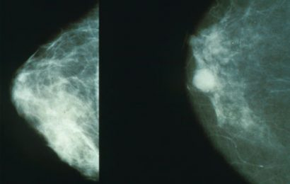 Targeted therapy drug helps women with aggressive breast cancer live longer