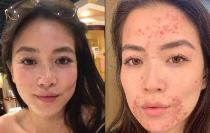 CBS Anchor Frances Wang Reveals Painful Skin Condition in an Emotional Instagram Post