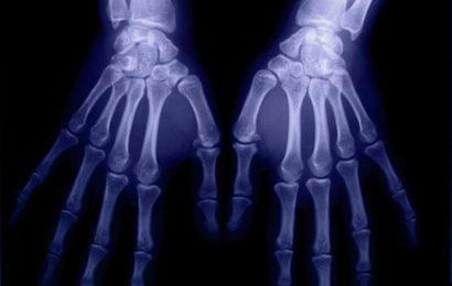 Common sites of bone erosion in rheumatoid arthritis ID'd on US