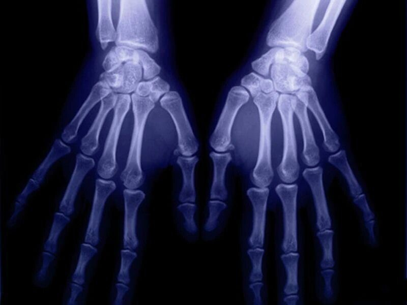 Common sites of bone erosion in rheumatoid arthritis ID'd on US
