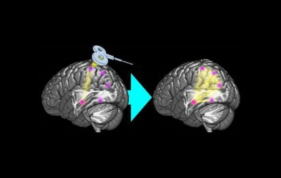 Enhancing memory network via brain stimulation