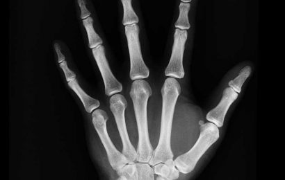 Some 15,000 Spaniards may be unaware they are suffering from the rare bone disease hypophosphatasia