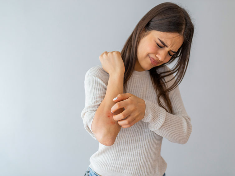 The itching and psychological problems often occur together