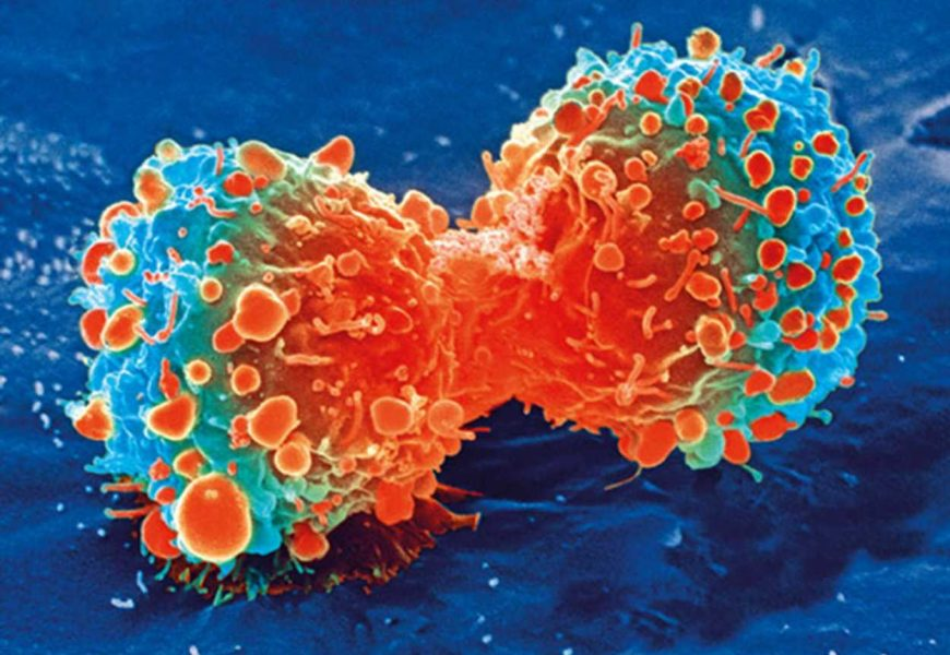 What makes a cancer test?