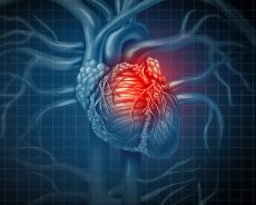 Heart pump devices linked to serious complications in some patients shortly after heart stent procedure