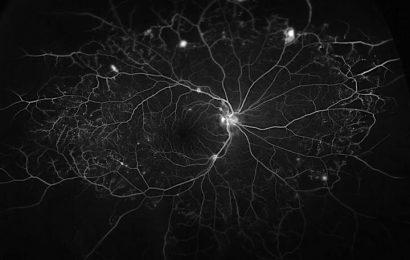 Helper protein worsens diabetic eye disease