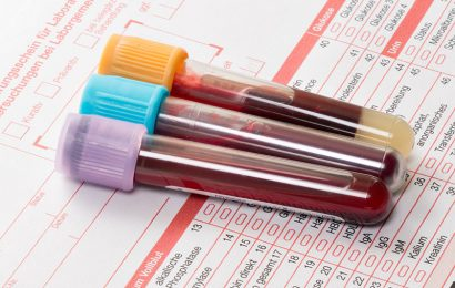 High cholesterol is risky for Younger