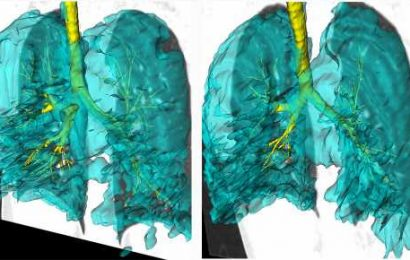 Lung images of twins with asthma add to understanding of the disease