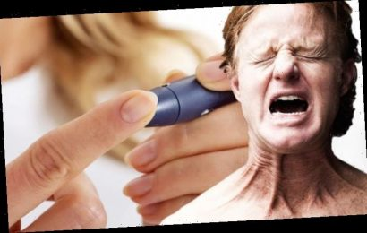 Type 2 diabetes: Feeling a 'burning sensation' here may signal the condition