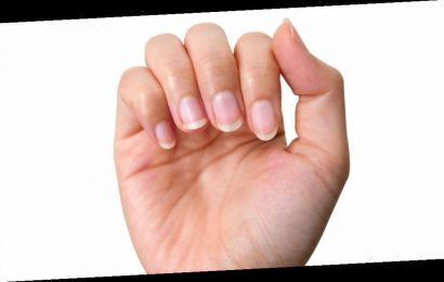 What does it mean when your fingernails are yellow?