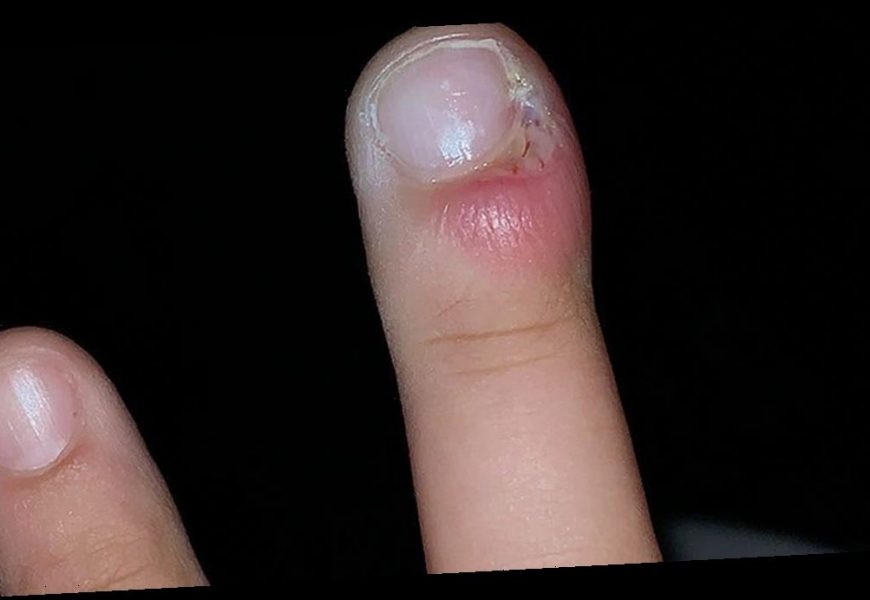 Teen almost has finger amputated as a result of her nail biting habit