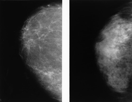 Abbreviated MRI outperforms 3-D mammograms at finding cancer in dense breasts