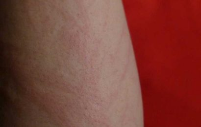 Half of lupus rashes harbor high levels of bacteria responsible for infections