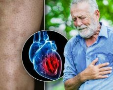 Heart attack warning – does your arm look like this? Subtle warning sign on your skin