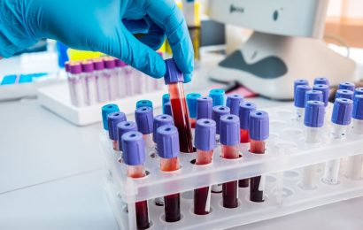 US scientists develop crucial blood test for coronavirus antibodies