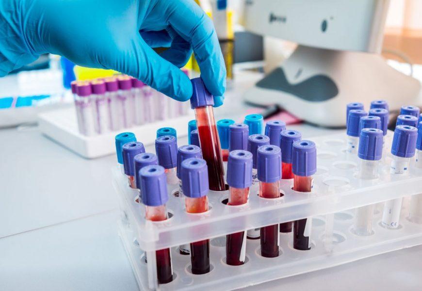US scientists develop crucial blood test for coronavirus antibodies