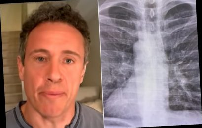 Chris Cuomo Shares Chest X-Rays as He Battles Coronavirus: 'You Have to Fight to Keep It Out'