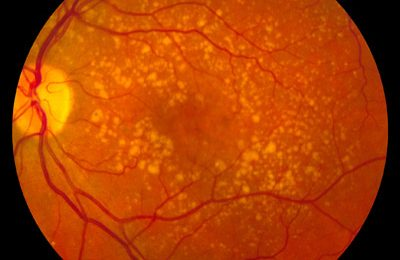 Researchers pinpoint potential new therapeutic target for eye disease